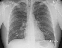 Astma to przewlekła choroba płuc, która powoduje zwężenie oraz obrzęk dróg oddechowych i wytwarzanie dodatkowego śluzu.